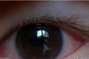 肝不好看眼眼睛若呈现这3个现象需警觉或是肝脏在求救