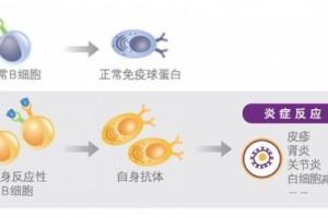 B细胞要害通路敞开狼疮靶向医治新时代