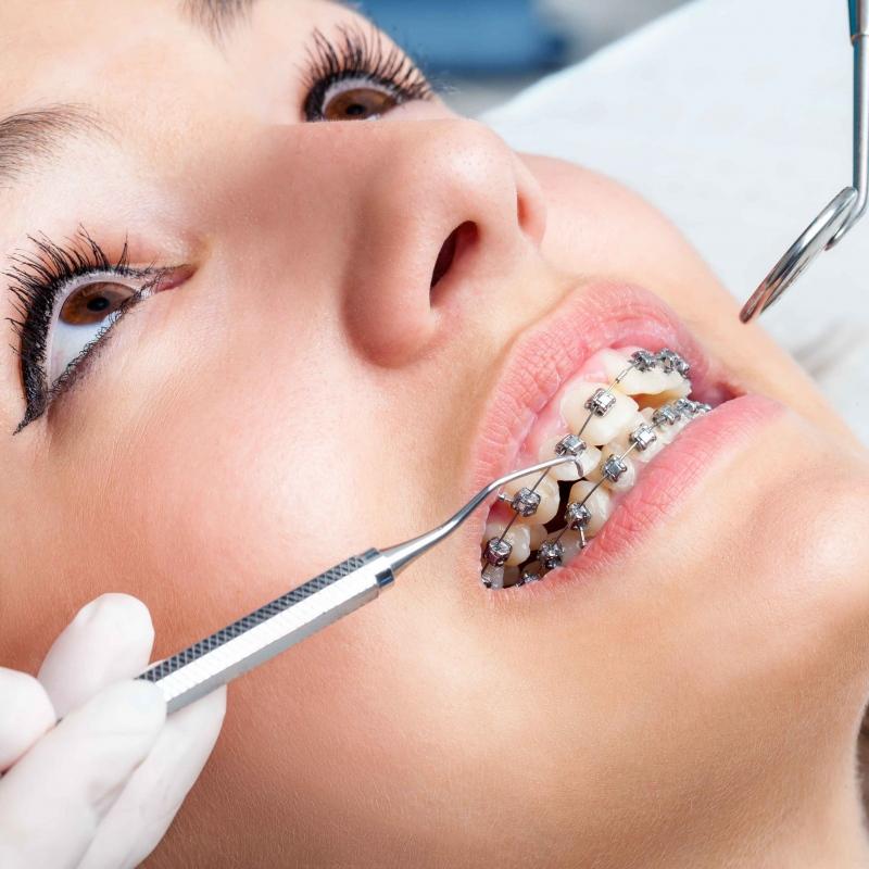 戴牙套吃东西疼痛戴牙套应该注意什么