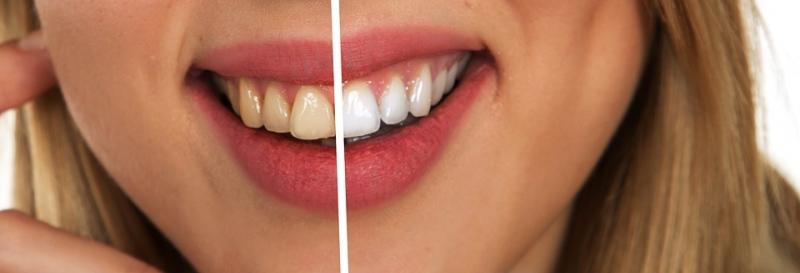 洗牙后要上药吗洗牙后如何护理